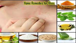 Home Remedies for Hives: Paiye Aasan Treatment Ghar Par