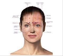 We use botox® in our vancouver practice for chronic migraine therapy. Botox For Migraine Migrainepal