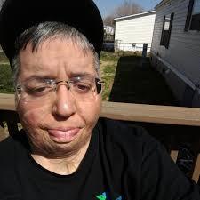 Lisa Soto - Burn Survivor