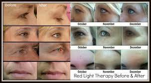 red led light for face