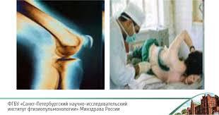 Туберкулез глаз  Туберкулез костей