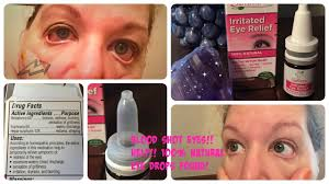 cure blood shot eyes fast natural eye drops tested reviewed you