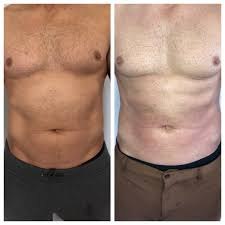 Contour Light Body Sculpting Before And After Body Contouring In Arlington Va Fat Reduction Procedure