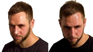 Hair Line Design Transplant Hairline Design In A Caucasian Male At Darling Buds