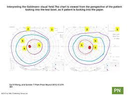 Visual Field Chart Interpretation Interpreting The Goldmann Visual Field Ppt Download