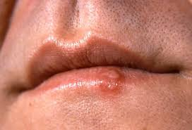 picture of cold sores fever blisters