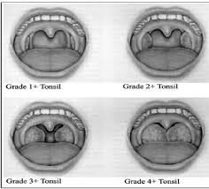 Tonsil Size Chart Tonsil Size Chart Related Keywords Suggestions Tonsil