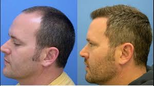 Hair Transplant In India Reviews