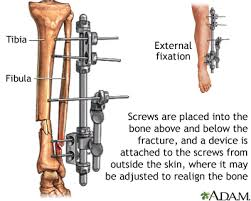 external fixator external fixation device medlineplus medical encyclopedia image