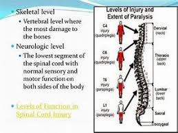 Spinal Cord Injury Chart Function And Spinal Cord Injury Levels Chart Bing Images