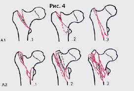 Реферат Закрытый оскольчатый чрезвертельный варусный перелом  В целом при внутренней фиксации вертельных переломов предъявляются высокие требования к механической стабильности Ассоциация Остеосинтеза предлагает три