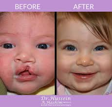 cleft lip repair palate cleft lip surgery in lebanon dr hussein hashim