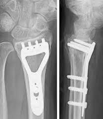 手首 骨折 手術