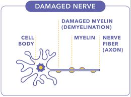 Multiple Sclerosis Ms Progression Ocrevus Ocrelizumab