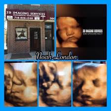 3d ultrasound bronx ny. Modren Ultrasound Photo Of 3D Imaging Services  Bronx NY United States To 3d Ultrasound Bronx Ny Yelp