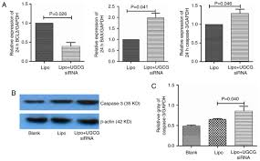 And Apoptosis Proliferation The Glucosylceramide Synthase Regulates nWqZZI4R