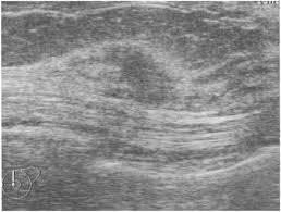 Ultrasound demonstration of mammographically detected ...