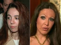 What happened to Amy Fisher's face? 'Long Island Lolita' debuts shocking  physical transformation - New York Daily News