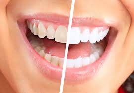 Image result for in whitening your teeth