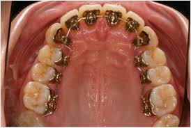 Image result for lingual orthodontics