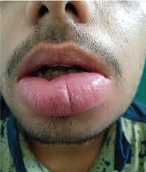 granulomatous cheilitis involving the