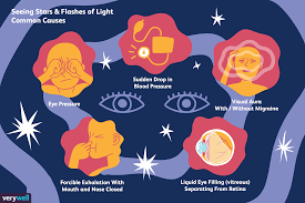 Seeing Colored Lights In Vision Why You Sometimes See Stars And Flashes Of Light