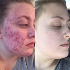 Image result for tretinoin