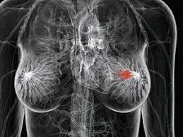 Xét nghiệm máu phát hiện sớm ung thư vú sớm