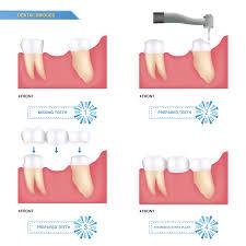 dental crowns houston dental bridges sugar land pearland dental crowns and dental bridges in houston