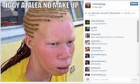 person with albinism and the caption iggy azalea no make up to his insram 2 feed