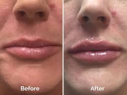 Candy Carney,... - Dermatology & Skin Cancer Surgery Center   Facebook
