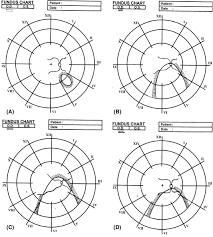 Fundus Chart Prophylactic Laser Photocoagulation Of Fundal Coloboma Does