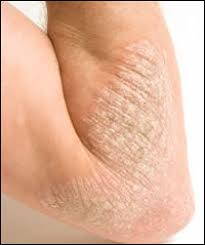 Controlling the Itch: How to Manage Your Eczema -