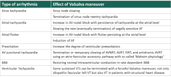 Types Of Arrhythmia Chart Arrhythmias And The Effect Of Valsalva Maneuver Arrhythmias