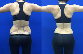 Contour Light Body Sculpting Before And After I Tried Laser Liposuction Before And After Laser