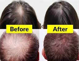 best hair growth treatment - priceinfo.over-blog.com