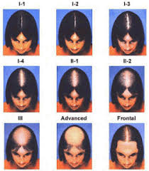 Female Pattern Hair Loss Impressive The Difference Between Male Female Pattern Hair Loss