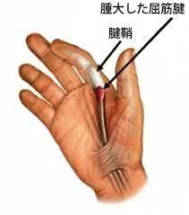 ばね 指 治療 ためして ガッテン