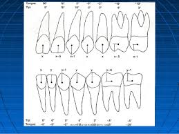 Mbt Bracket Placement Chart Concepts Of Orthodontic Bracket Positioning Techniques