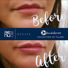 will juvederm ps lumps go away