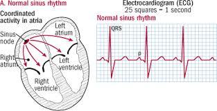 Common Heart Rate Chart Atrial Fibrillation Common Serious Treatable Harvard Health
