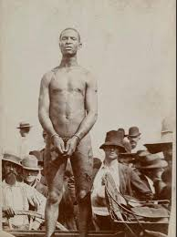 「Whipping scars of an enslaved man named Gordon who escaped, observed during medical examination at a Union camp in Baton Rouge, Louisiana, in 1863.」の画像検索結果