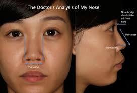 chloe nose doctor ysis