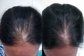 Male Or Female Pattern Baldness Treatments Cool Female Hair Loss Treatment Pattern Baldness In Gurgaon