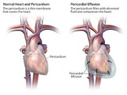pericardial sac your pericardium cardiac health