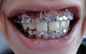 Resultado de imagem para fixação maxilomandibular