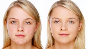 acne blemish covering makeup foundation concealer tutorial you