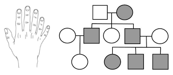 This worksheet looks at pedigrees in families with albinism. Analyzing Human Pedigrees Biology Libretexts