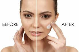 Acne behandeling Amsterdam - ☑️ Gespecialiseerd in acne