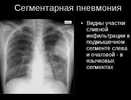 Пневмония у детей проявления и лечение Сегментарная пневмония
